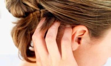 dermatite seborreica caspa couro cabeludo anticaspa