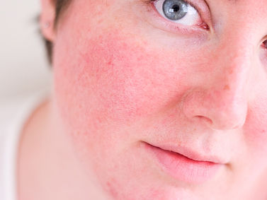 rosácea vermelhidão queimação no rosto
