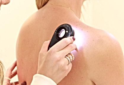 Dermatoscopia para detecção precoce do câncer de pele e exame capilar de alopecias