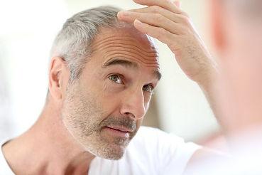 queda de cabelo calvície alopecia androgenética