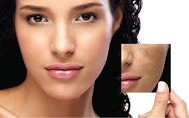 melasma mancha escura no rosto