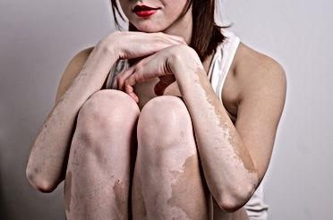 vitiligo manchas brancas na pele