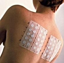 teste alérgico de contato ou patch test