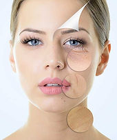 anti-aging-nad-service.jpg.pagespeed.ce.