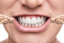 Denti apparecchio a Massa Carrara