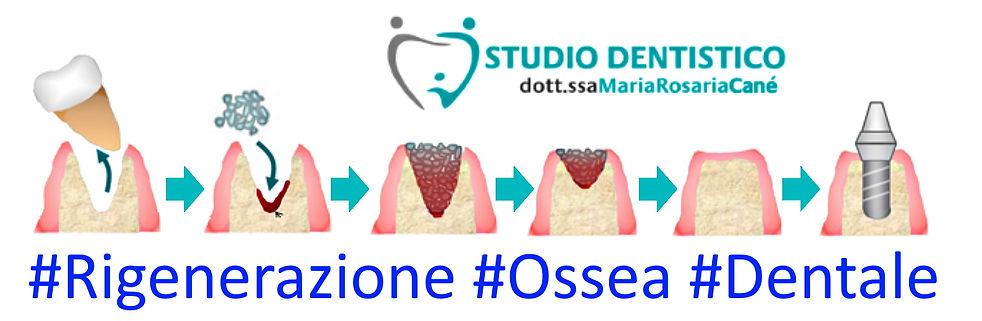 Fasi rigenerazione ossea studio dentisti