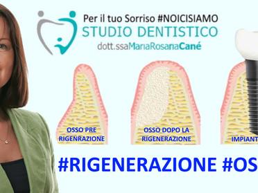 Inserire in impianto dentale nel caso di osso non sufficiente? Oggi ti parlo di Rigenerazione Ossea!