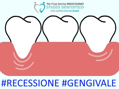 Gengive ritirate? Come curare e prevenire i colletti dei denti scoperti?