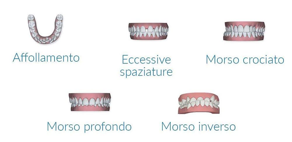 TIPI DI DIFETTI SORRISO PER INTERVENTO ORTODONTICO