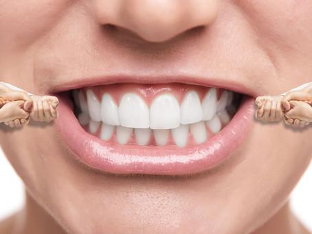 Raddrizzare i denti in modo invisibile?