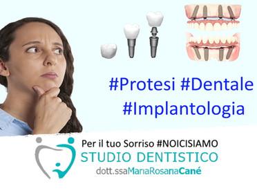Quale soluzione per i denti mancanti? #IMPLANTOLOGIA e #PROTESI . Come valutare Prezzo e Qualità?
