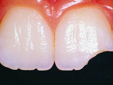 Un dolore lieve potrebbe essere un campanello d'allarme di una frattura dentale. Perché aspettar