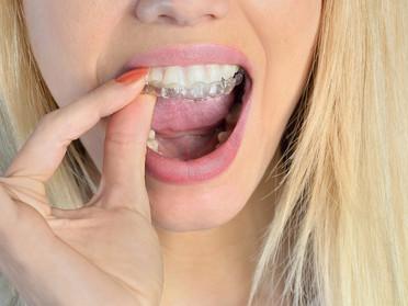 Come riallineare i denti e migliorare il Sorriso senza portare un apparecchio fisso?