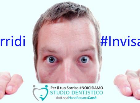 Ti senti a disagio per i denti storti? La soluzione può essere anche invisibile!