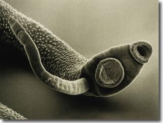 Parasites: the hidden menace