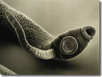 Parasites: the hidden menace