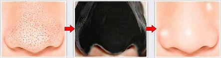Маска для носа против черных точек