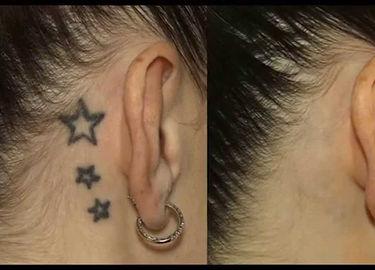 Laser Tattoo Removal I Burlington, Ontario I www.radiancelaser.ca