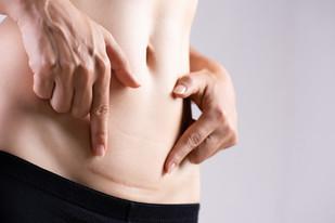 Narbenbehandlung nach Operationen, Unfällen, Verletzungen. Bild: ©siam.pukkato/shutterstock