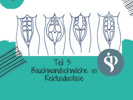 TEIL 3: Bauchwandschwäche versus Rektusdiastase