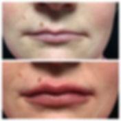 Juvederm Ultra Lips2.JPG