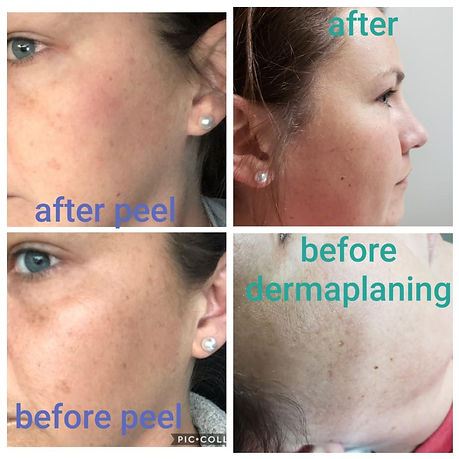 Chemical Peel  Dermaplaning.JPG