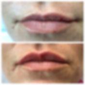 Juverderm Ultra lip.JPG