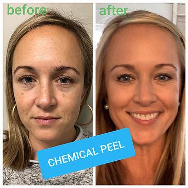 Chemical Peel Jen.jpg