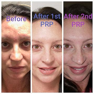 PRP 3 treatments.jpg