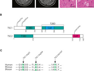 [New paper] Somatic mutations in FCD
