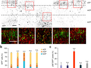 [New paper] The mechanism in which AKT3 pathway causes cortical malformation