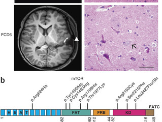 [New paper] Somatic mutations that cause focal cortical dysplasia