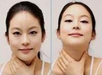 출장샵 도도출장샵 목과 턱에 탄력주는 안마방법