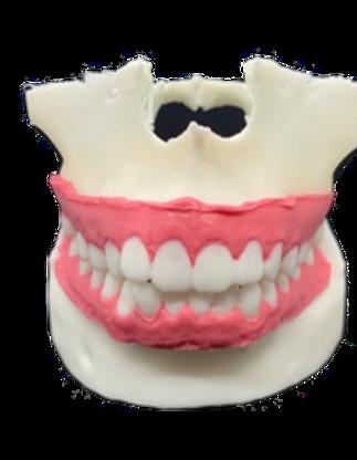 第三世代模型(歯肉形態を完全再現)