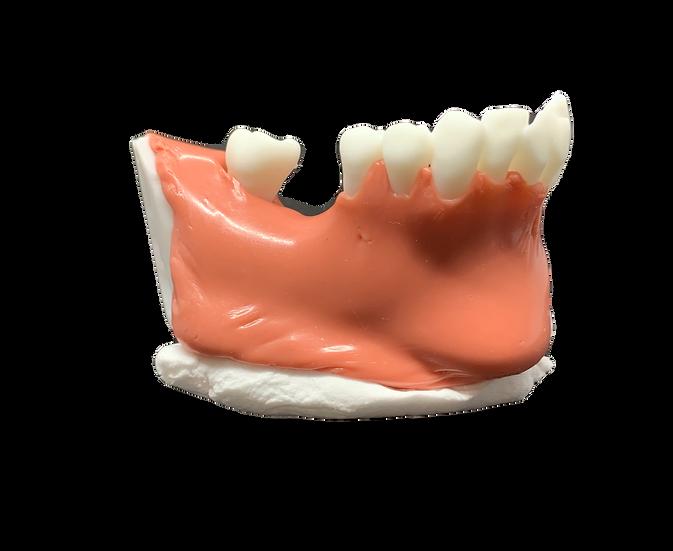 骨+骨膜・シュナイダー膜+歯肉