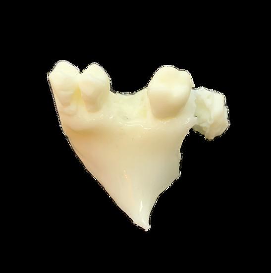 骨+骨膜・シュナイダー膜