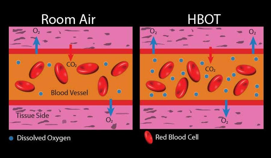 HBOT_Hyperbaric_Oxgen_Therapy.jpg