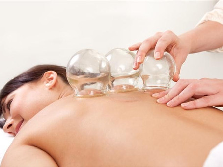 6 Reasons You Need To Try Cupping Therapy