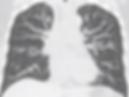 胸部CT_edited.png