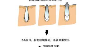 陳皮的101次靠腰【6】-- 妳以為妳毛孔內躲的封閉粉刺是地鼠?別傻了,它們都是又肥又胖的卡比獸