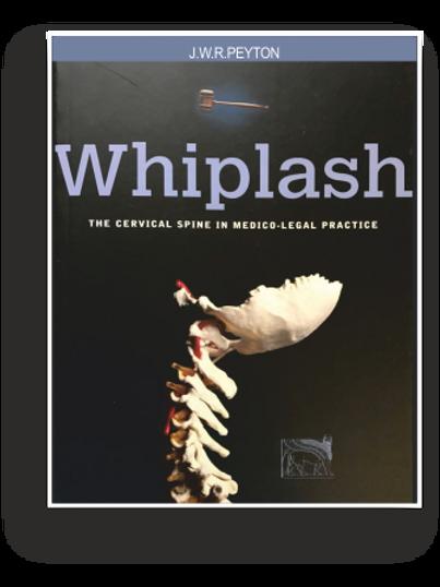 WHIPLASH (eBOOK)