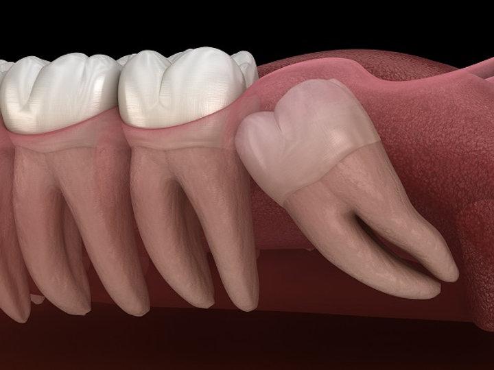 wisdom-teeth-extraction.jpg