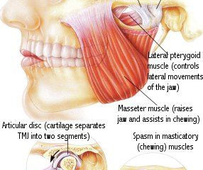 TMJ massage - Temporomandibular joint