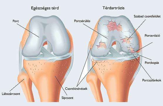 térd-artrózis.jpg