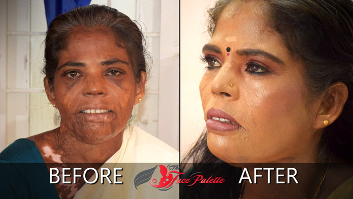 Empowering makeovers as part of #ScarsAreBeautiful campaign