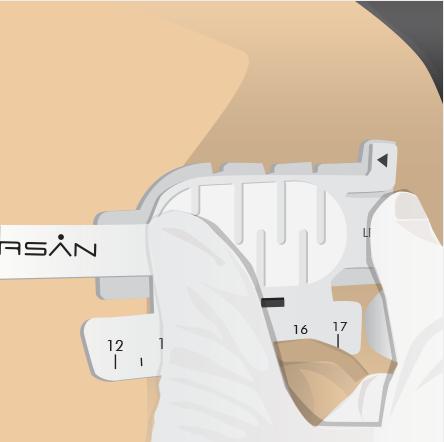 Orasn-Medical Illustrations