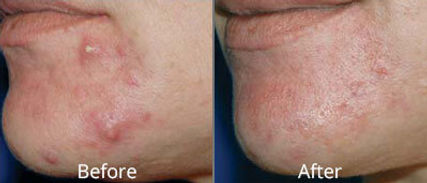 isolaz-acne-treatment-before-after-tulsa
