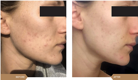 redness-acne2.png