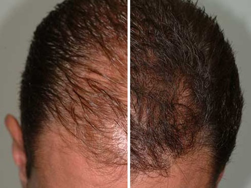 Hair Restoration (PRP)