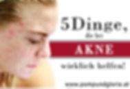 5 Dinge die bei Akne wirklich helfen_kle